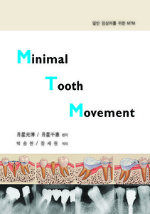 Minimal Tooth Movement