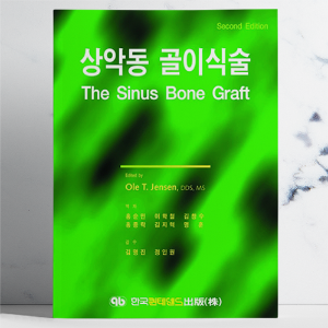상악동 골이식술 (The Sinus Bone Graft Second Edition)